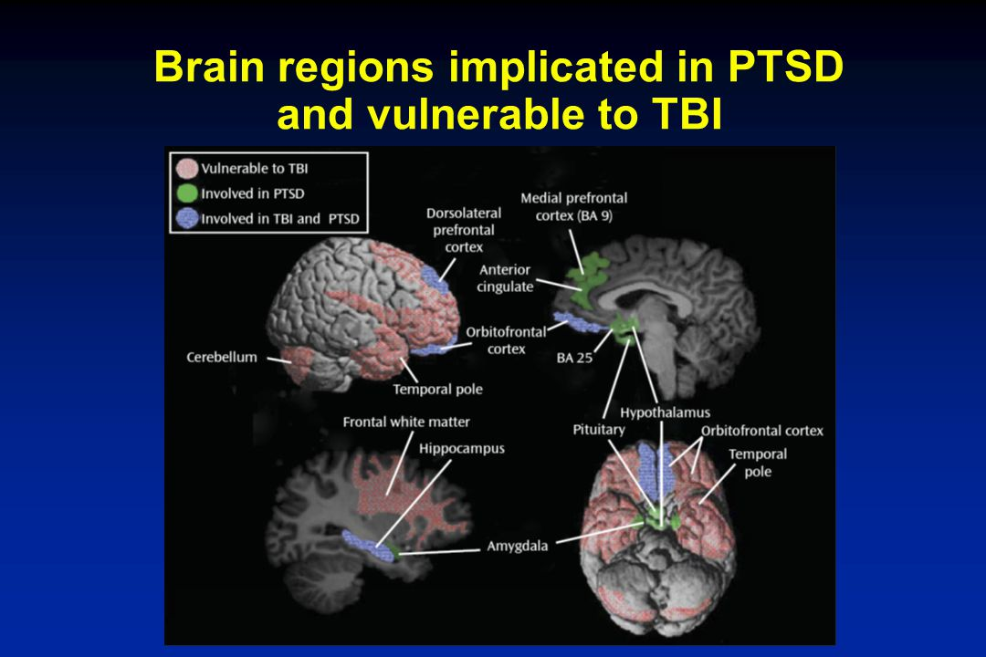 Brain regions implicated in PTSD and vulnerable to TBI