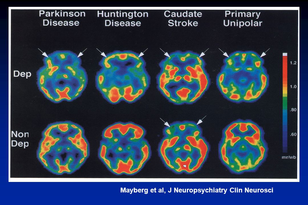 Mayberg et al, J Neuropsychiatry Clin Neurosci