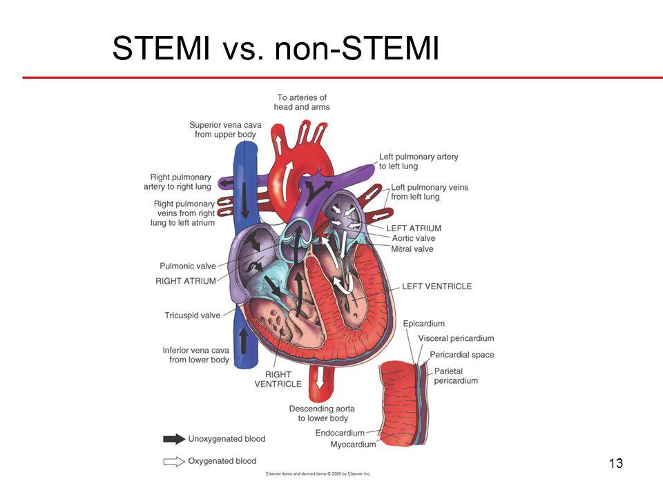 STEMI vs. non-STEMI