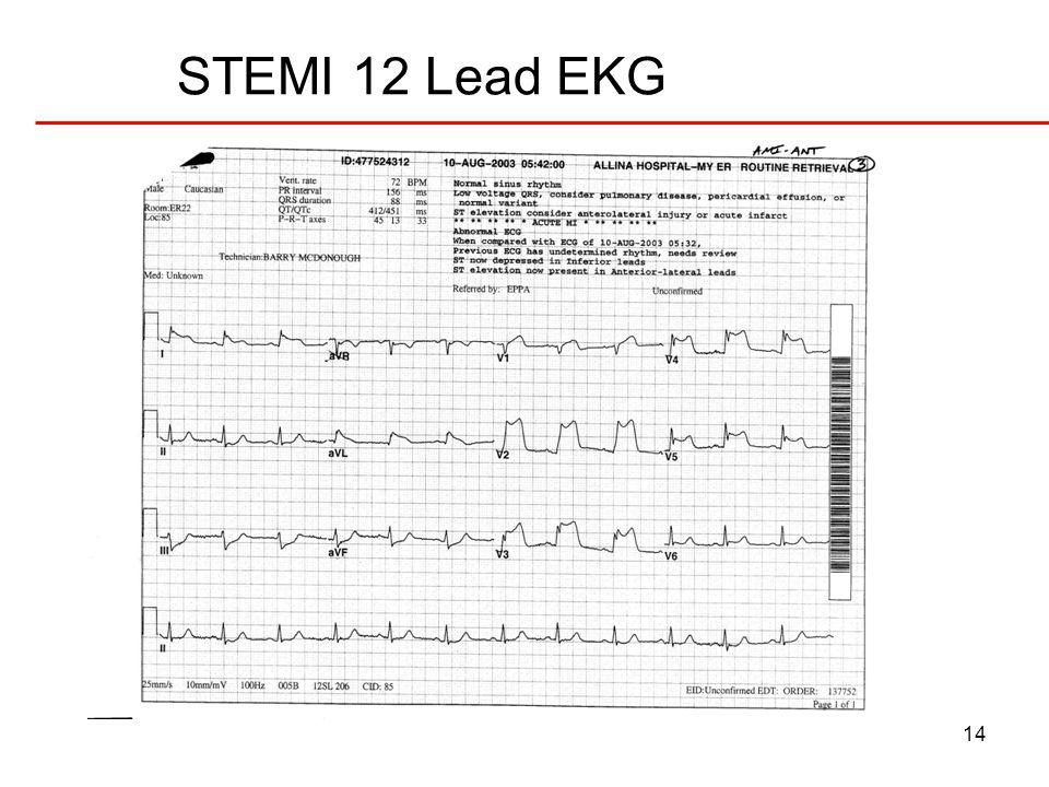 STEMI 12 Lead EKG