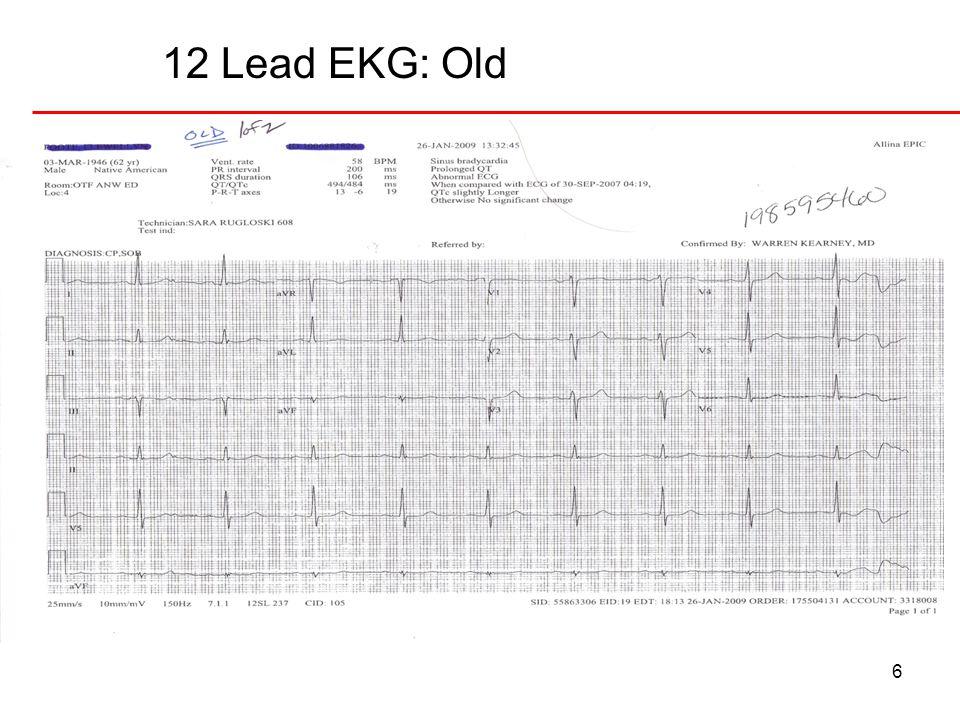 12 Lead EKG: Old