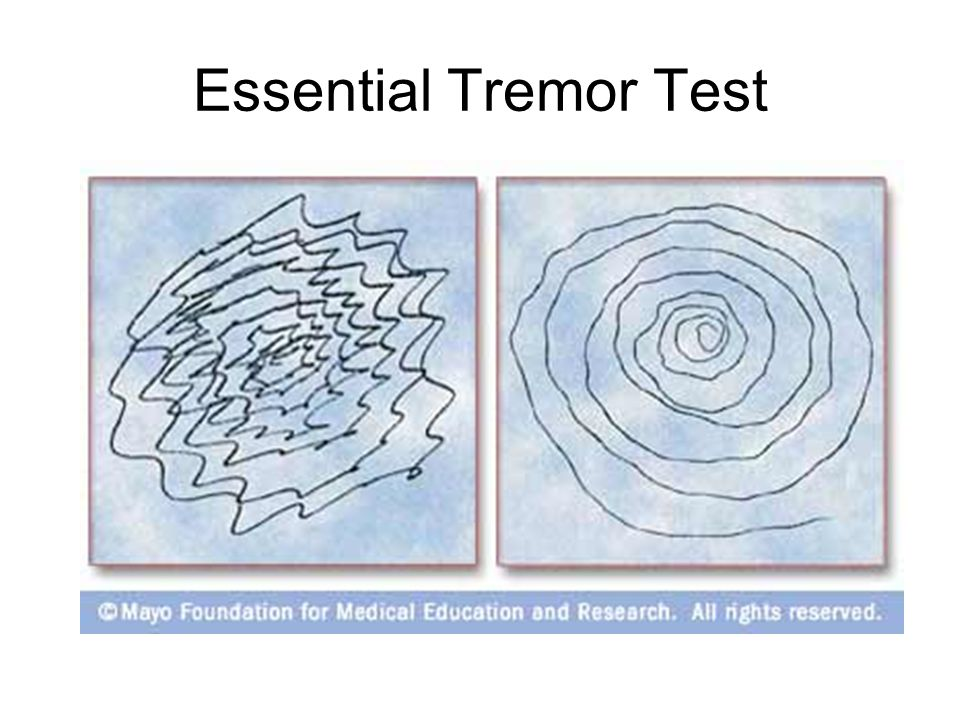 Essential Tremor Test