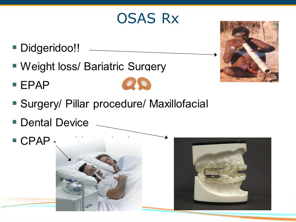 OSAS Rx Didgeridoo!! Weight loss/ Bariatric Surgery EPAP