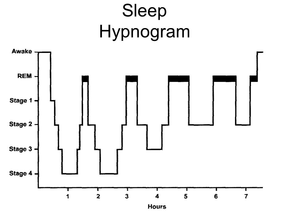 Sleep Hypnogram REM occurs more in the 2nd half of the night