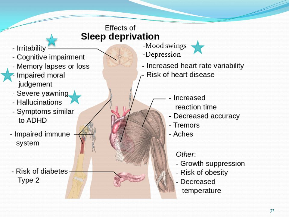 Sleep and Dementia Leading Age 2014 Session D5