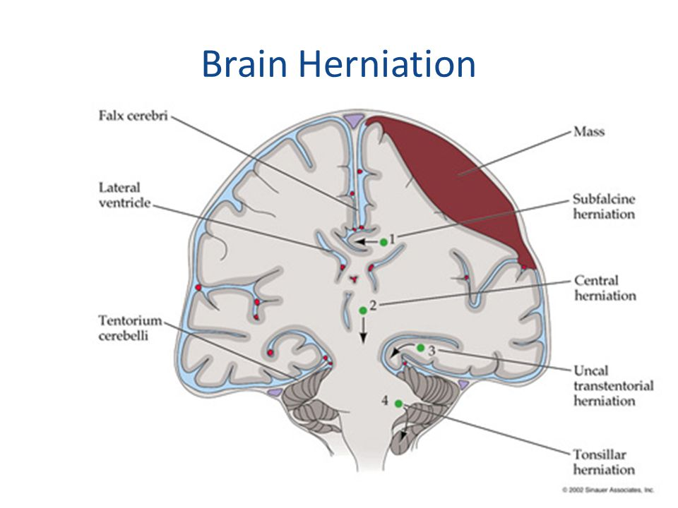 Brain Herniation Supratentorial masses may cause;