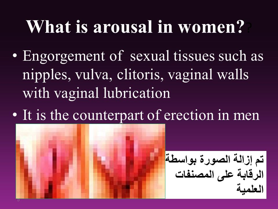 What is arousal in women