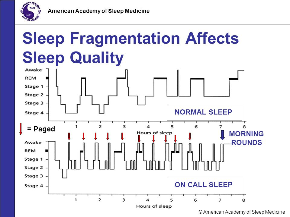 Sleep Fragmentation Affects Sleep Quality