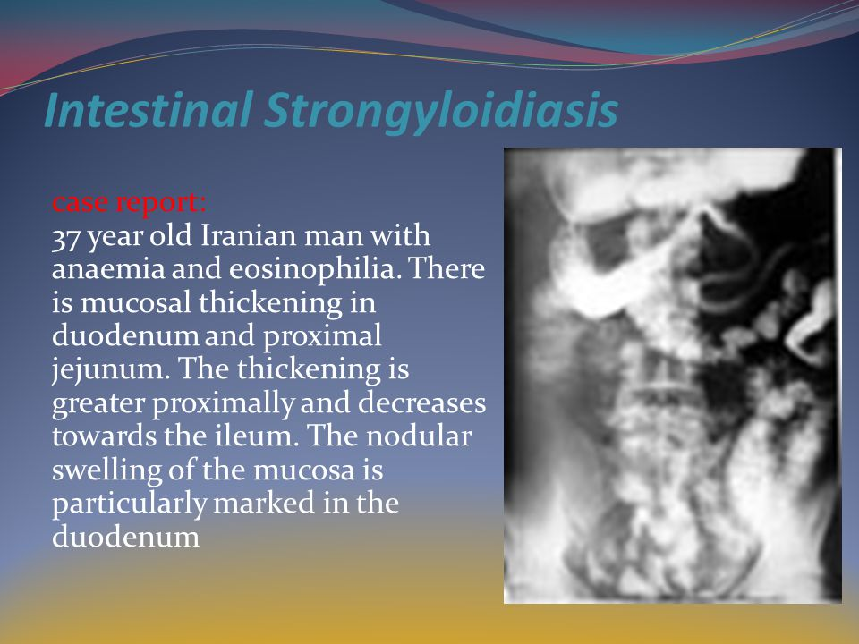 Intestinal Strongyloidiasis