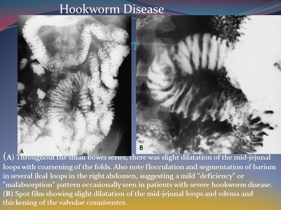 Hookworm Disease Hookworm Disease