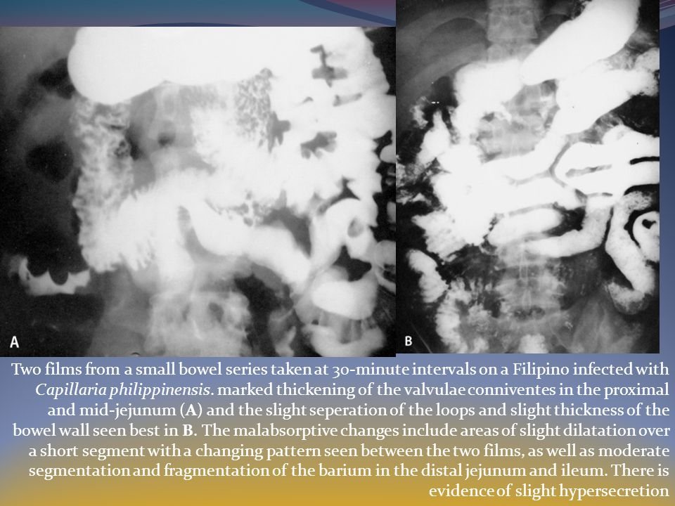 Two films from a small bowel series taken at 30-minute intervals on a Filipino infected with Capillaria philippinensis.