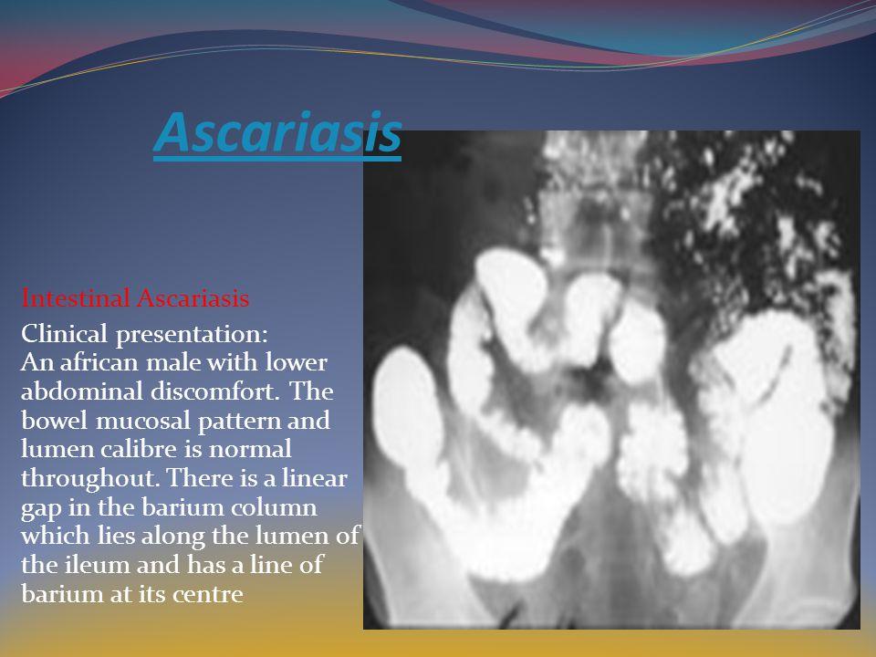 Ascariasis Intestinal Ascariasis
