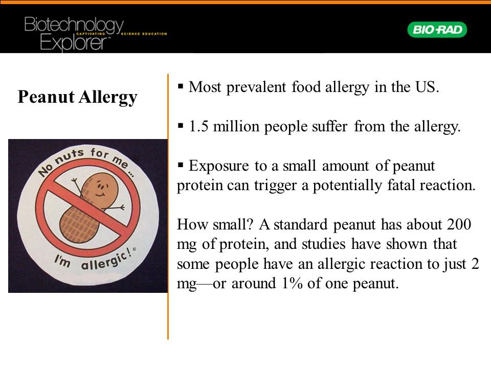Peanut Allergy Most prevalent food allergy in the US.