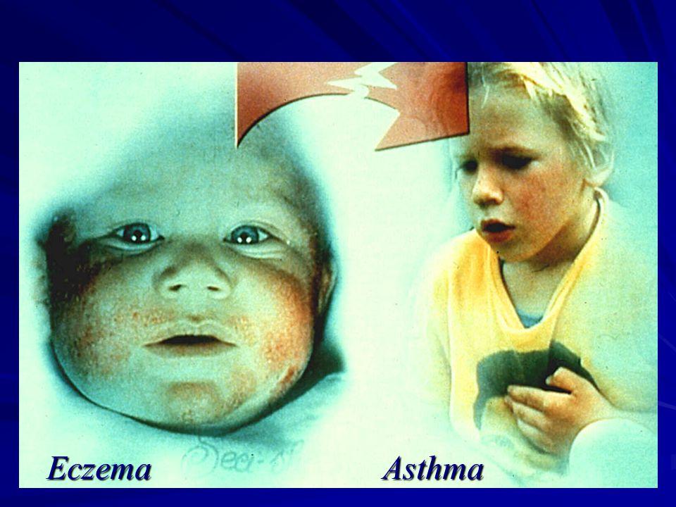Eczema Asthma