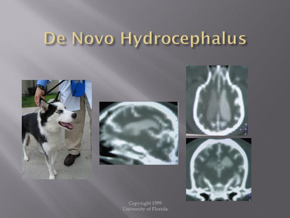 De Novo Hydrocephalus Copyright 1999 University of Florida