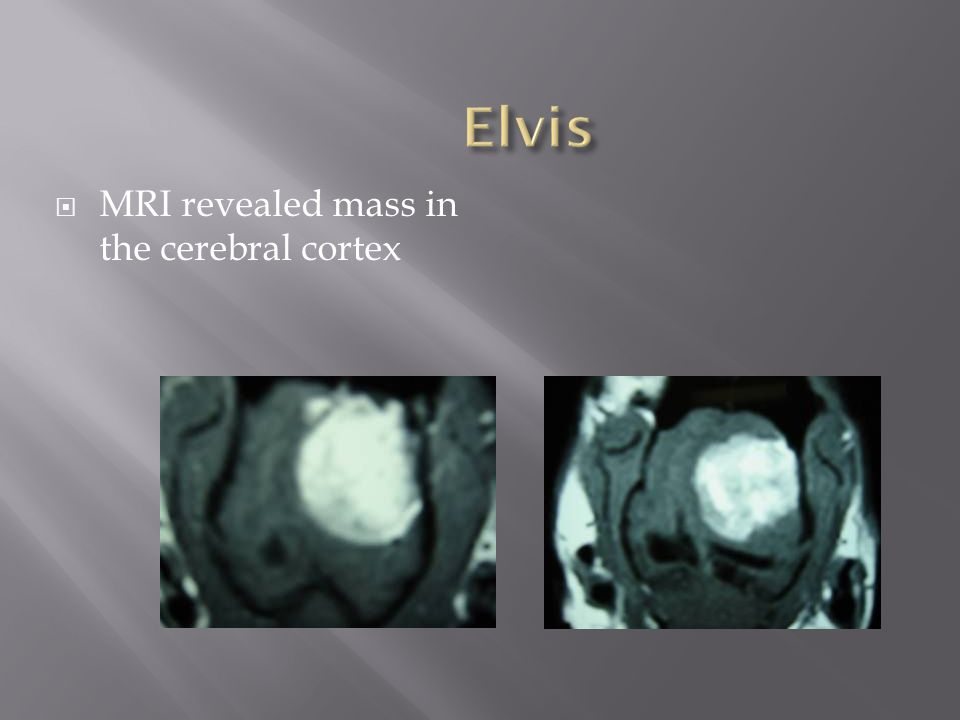 Elvis MRI revealed mass in the cerebral cortex