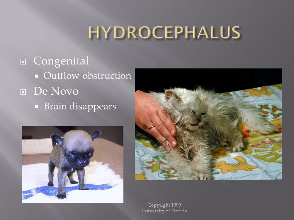 HYDROCEPHALUS Congenital De Novo Outflow obstruction Brain disappears