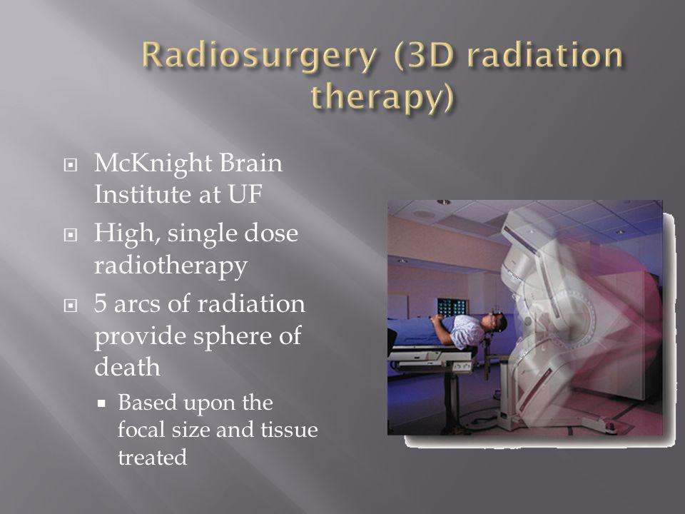 Radiosurgery (3D radiation therapy)