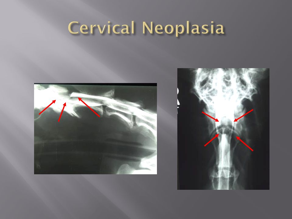 Cervical Neoplasia