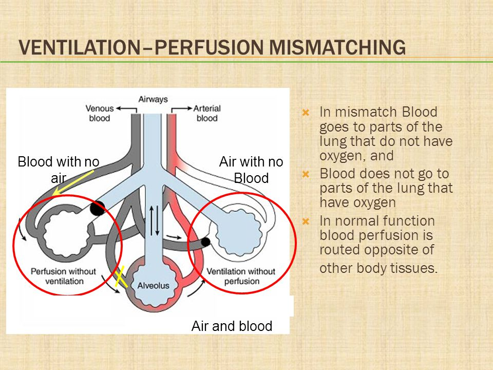 Ventilation–Perfusion Mismatching