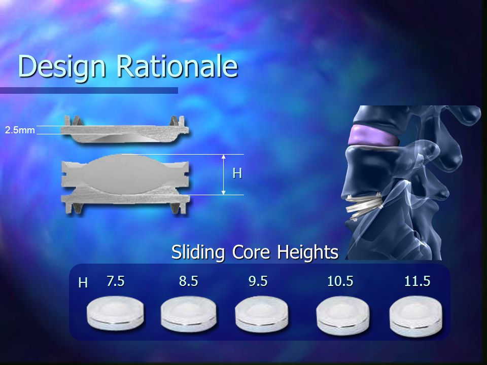 Design Rationale 2.5mm. H. Sliding Core Heights.