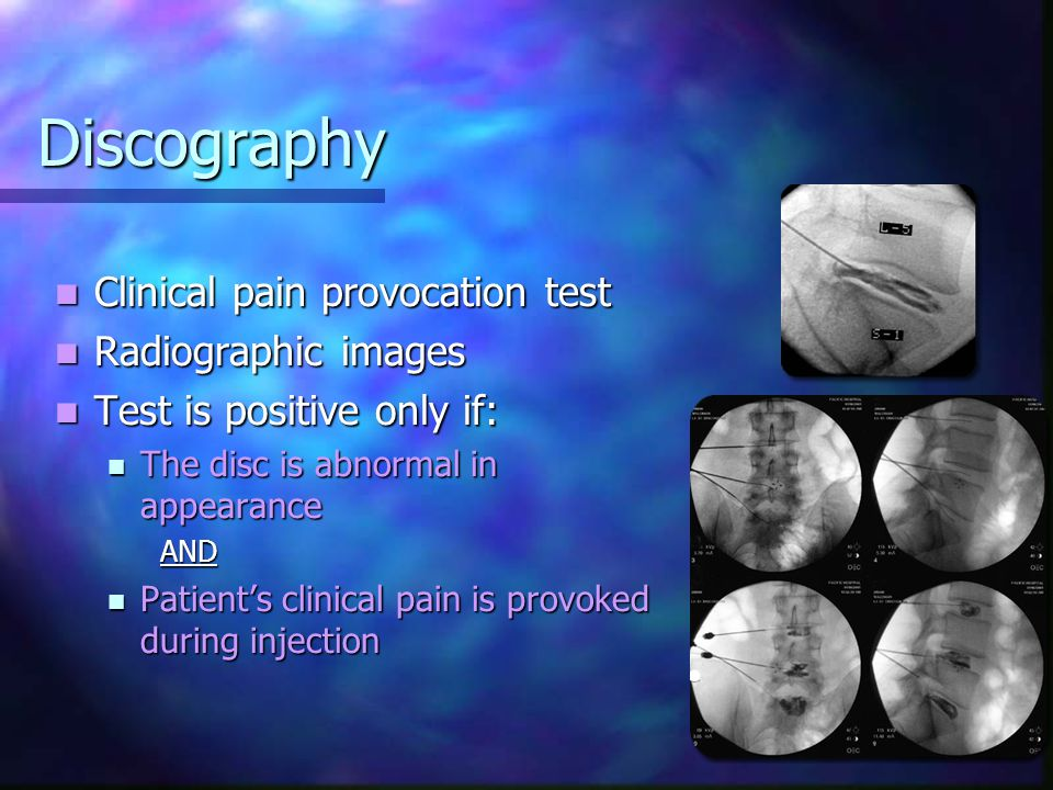 Discography Clinical pain provocation test Radiographic images
