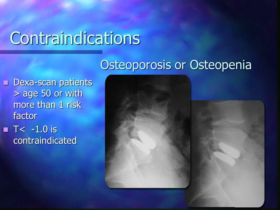 Osteoporosis or Osteopenia
