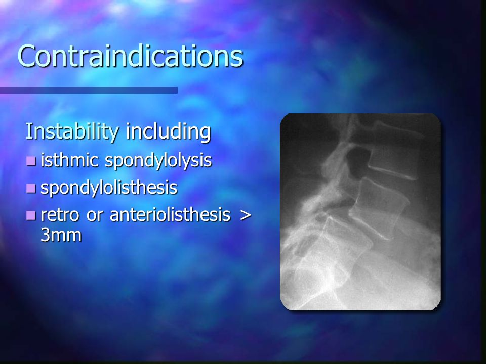 Contraindications Instability including isthmic spondylolysis