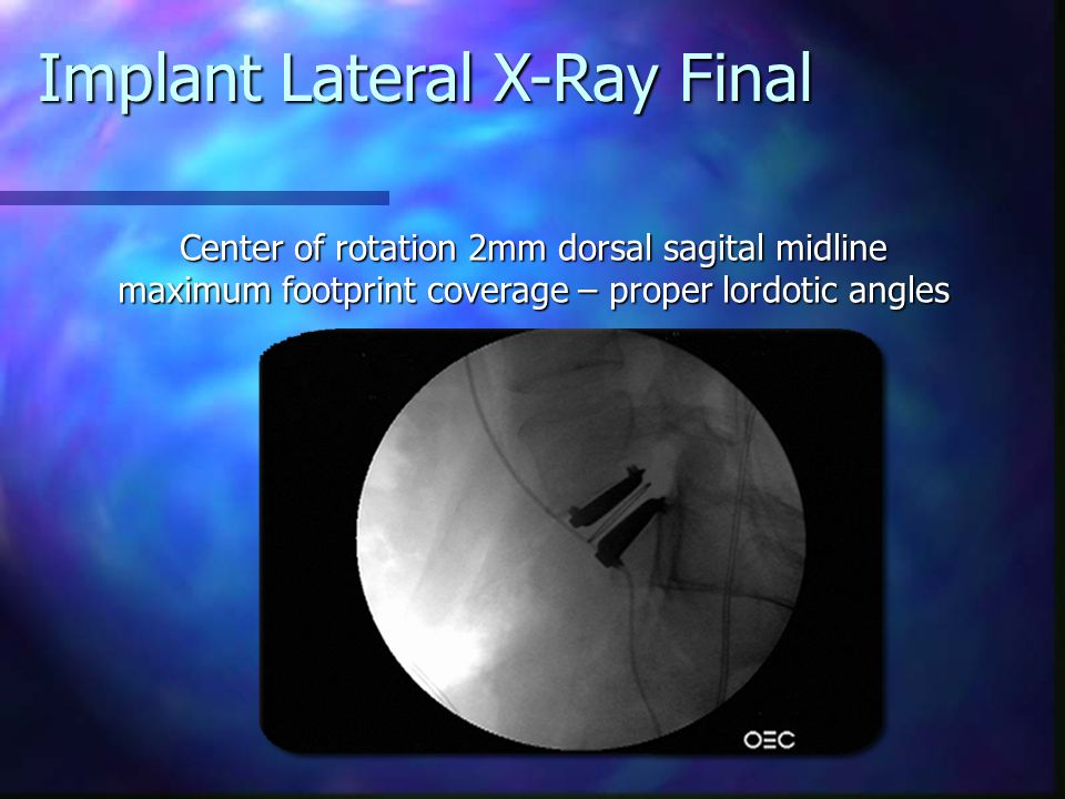 Implant Lateral X-Ray Final