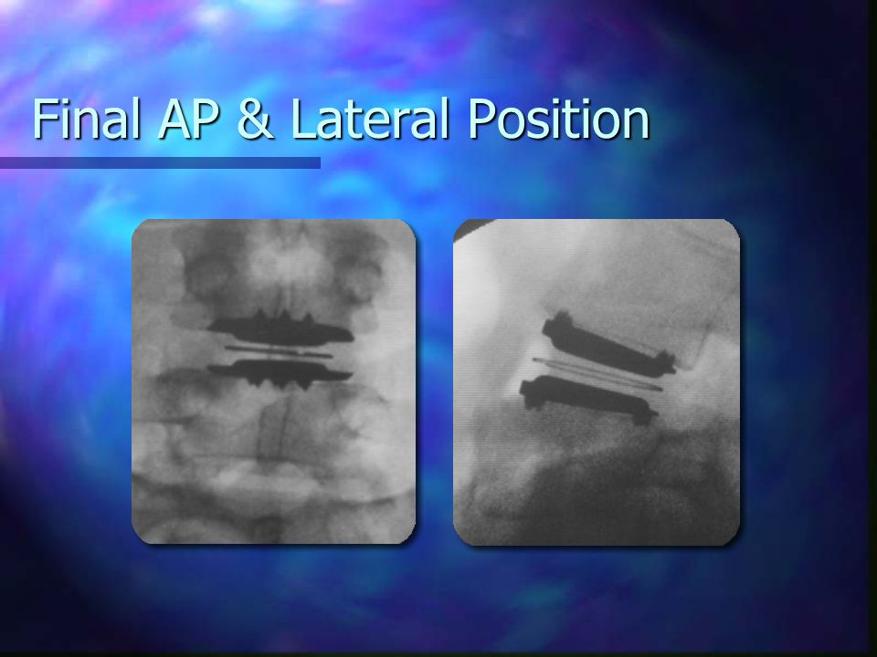 Final AP & Lateral Position