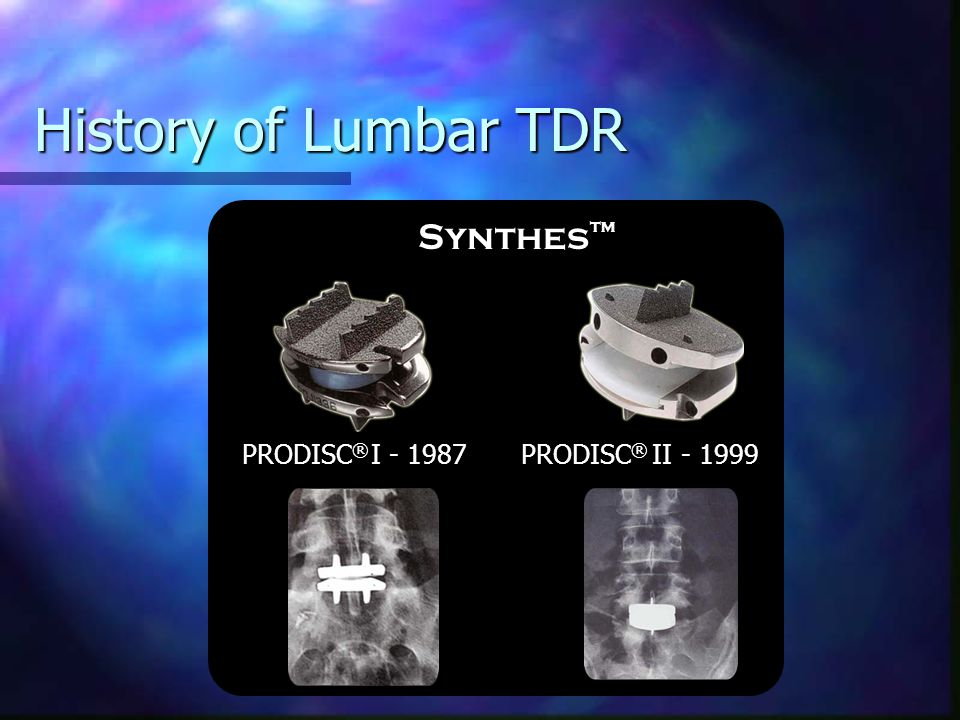 History of Lumbar TDR Synthes™ PRODISC® I - 1987 PRODISC® II - 1999