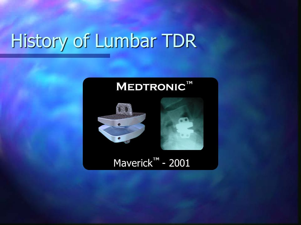 History of Lumbar TDR Medtronic™ Maverick™ - 2001