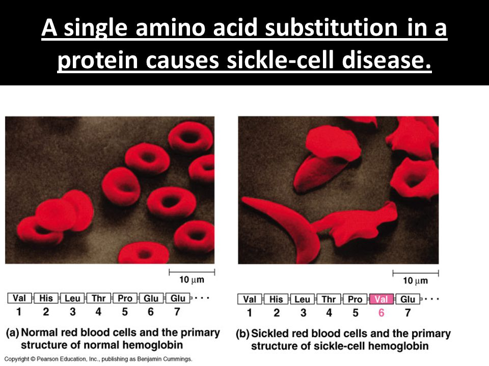A single amino acid substitution in a protein causes sickle-cell disease.