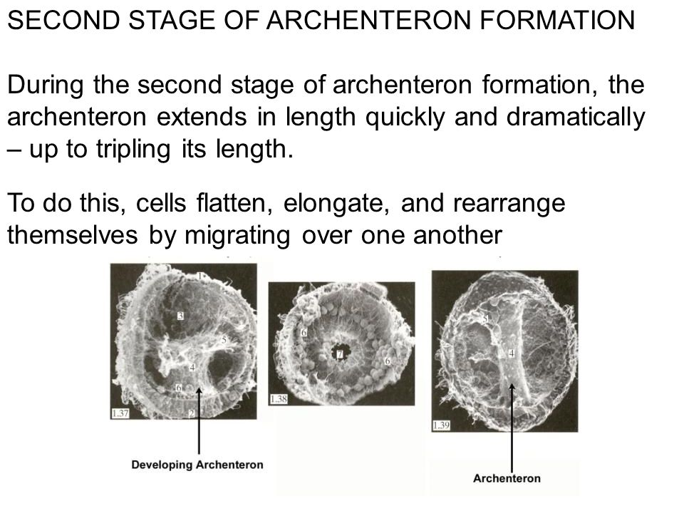 SECOND STAGE OF ARCHENTERON FORMATION