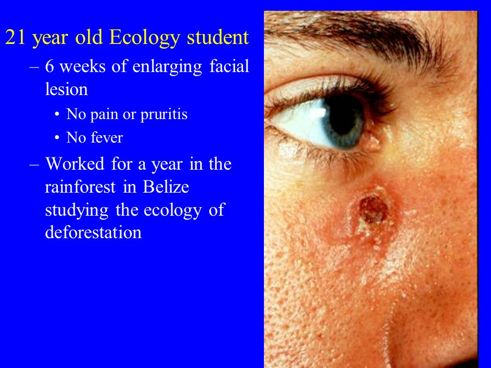 21 year old Ecology student