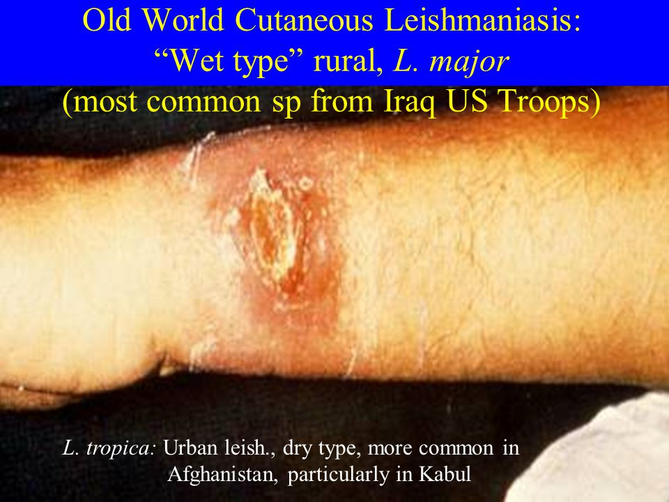Old World Cutaneous Leishmaniasis: Wet type rural, L