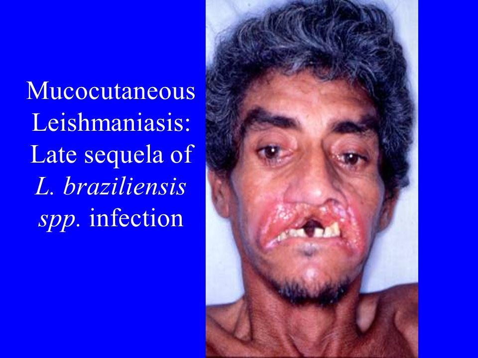 Mucocutaneous Leishmaniasis: Late sequela of L. braziliensis spp