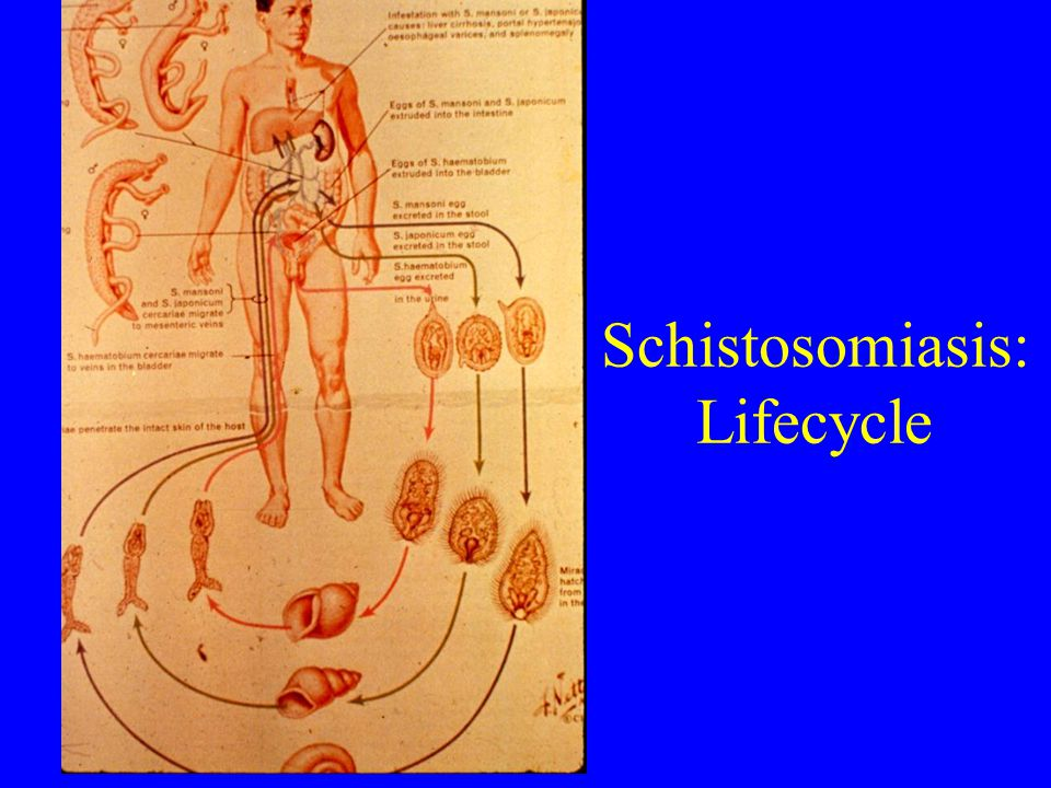 Schistosomiasis: Lifecycle