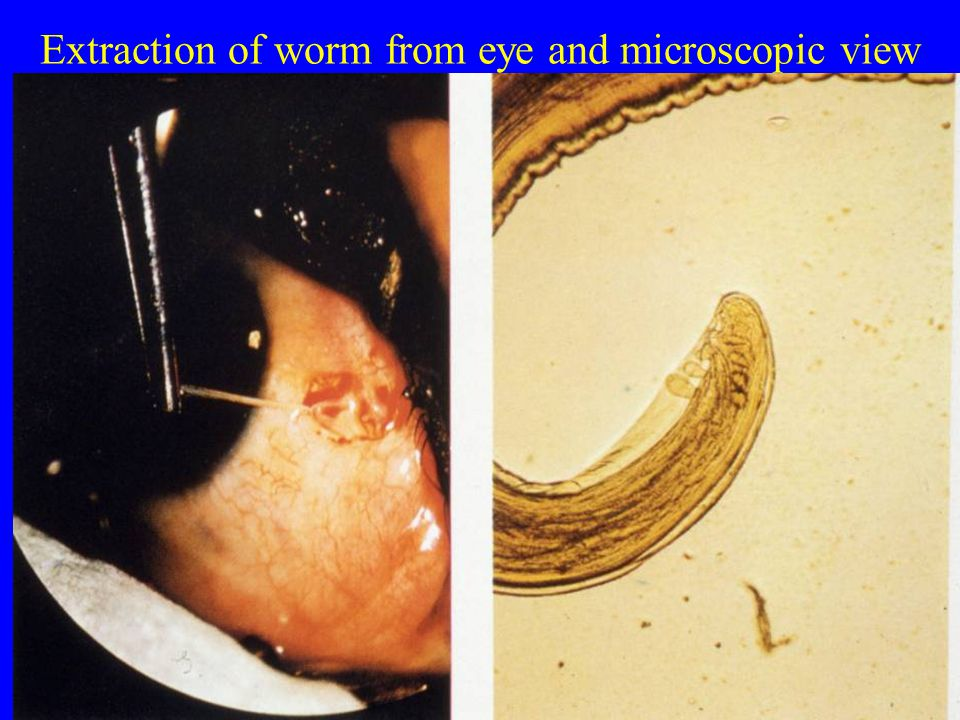 Extraction of worm from eye and microscopic view