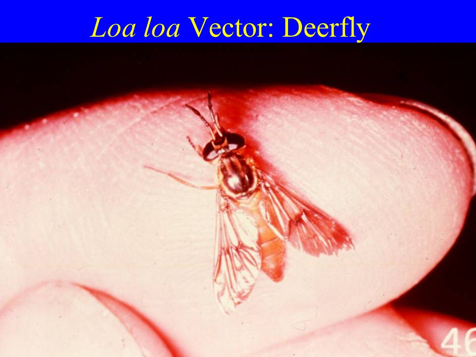 Loa loa Vector: Deerfly