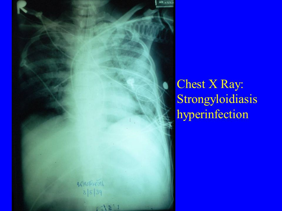 Chest X Ray: Strongyloidiasis hyperinfection