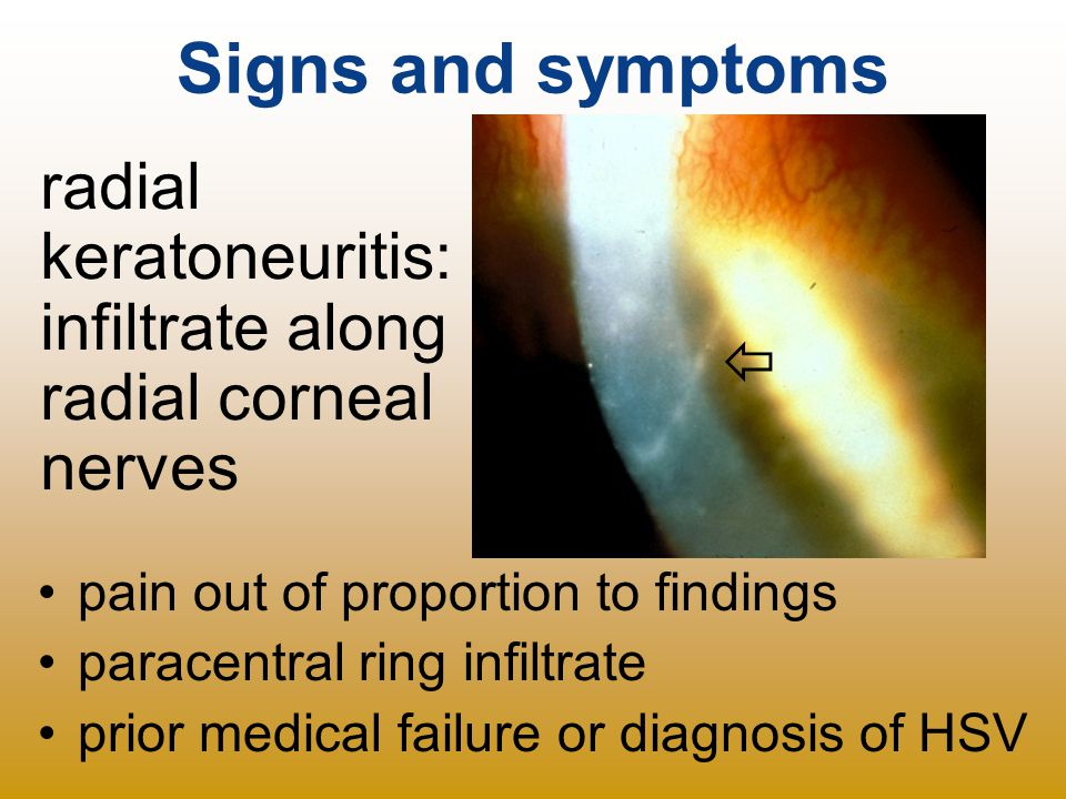 Signs and symptoms radial keratoneuritis: infiltrate along
