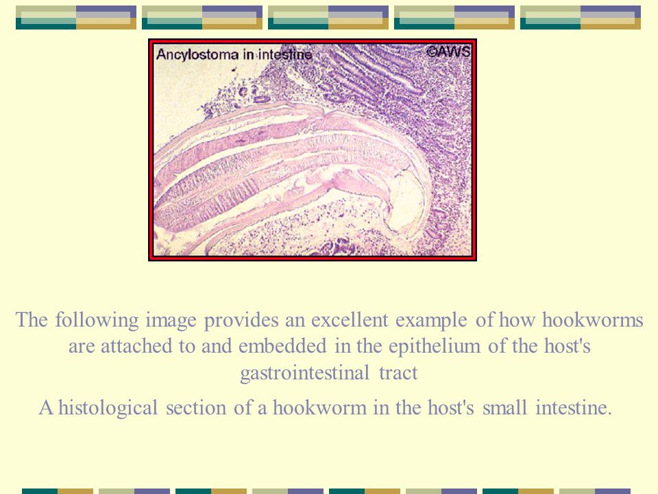 A histological section of a hookworm in the host s small intestine.