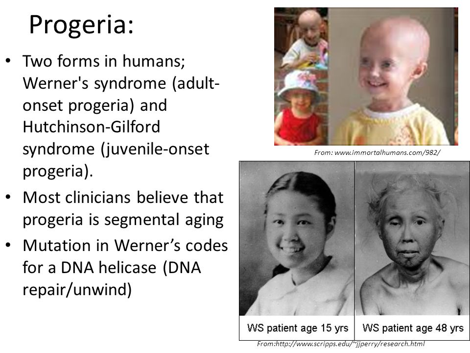 Progeria: Two forms in humans; Werner s syndrome (adult-onset progeria) and Hutchinson-Gilford syndrome (juvenile-onset progeria).