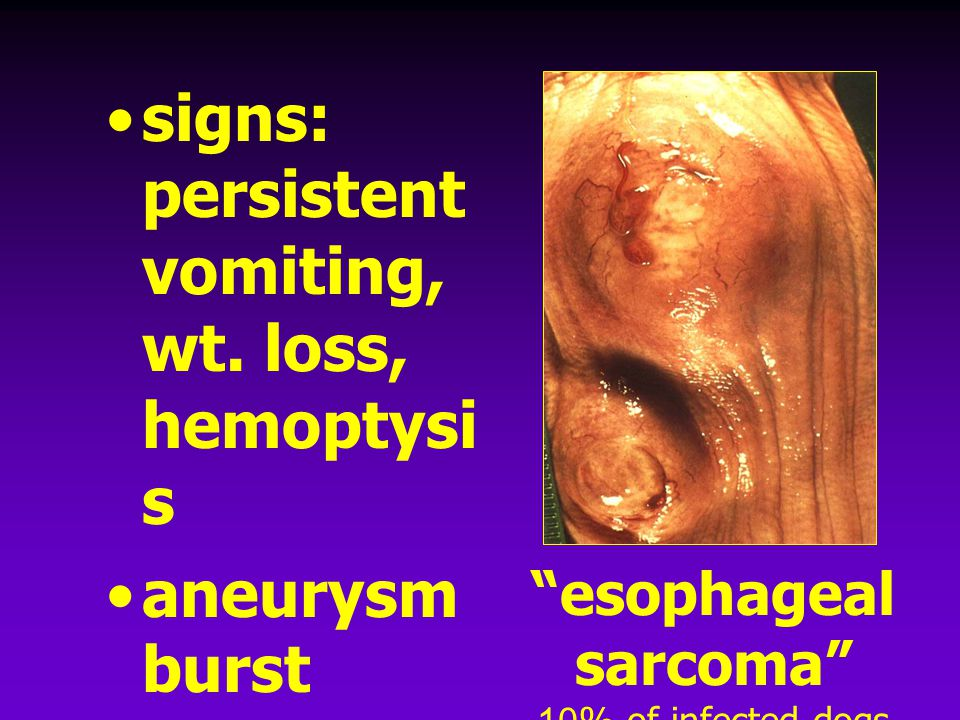 signs: persistent vomiting, wt. loss, hemoptysis