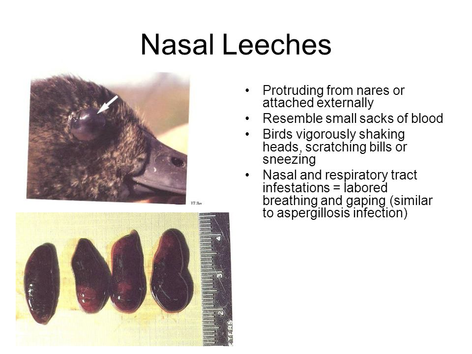 Nasal Leeches Protruding from nares or attached externally