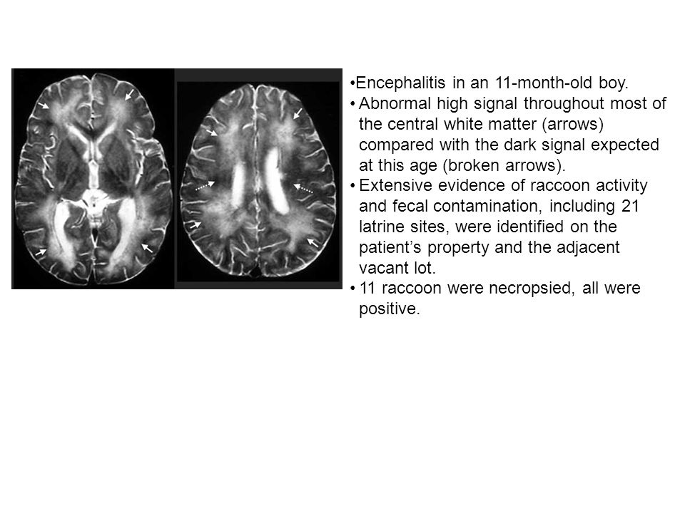 Encephalitis in an 11-month-old boy.