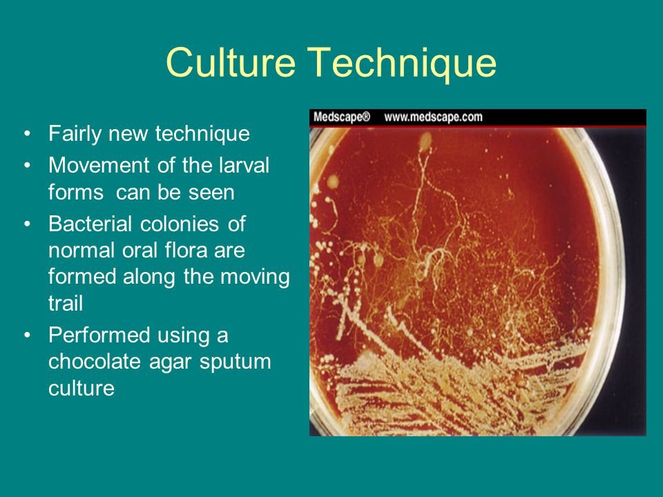 Culture Technique Fairly new technique