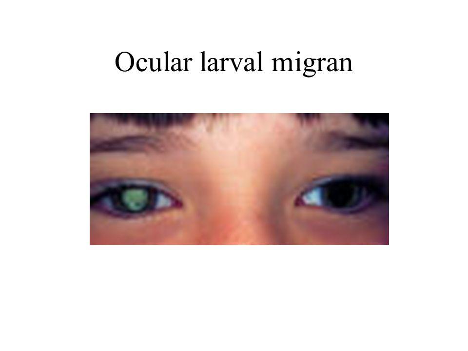 Ocular larval migran
