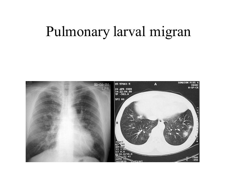 Pulmonary larval migran